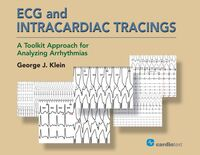Cover image of ECG and Intracardiac Tracings: A Toolkit Approach for Analyzing Arrhythmias