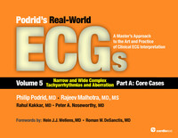Podrid's Real-World ECGs: Volume 5A, Narrow and Wide Complex Tachyarrhythmias and Aberration [Core Cases]